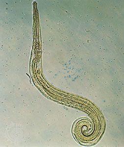 pinworm szövődmények