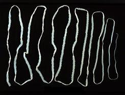 galandféreg jelei az emberi testben