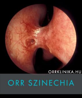 paraziták az orrban és a fülben)
