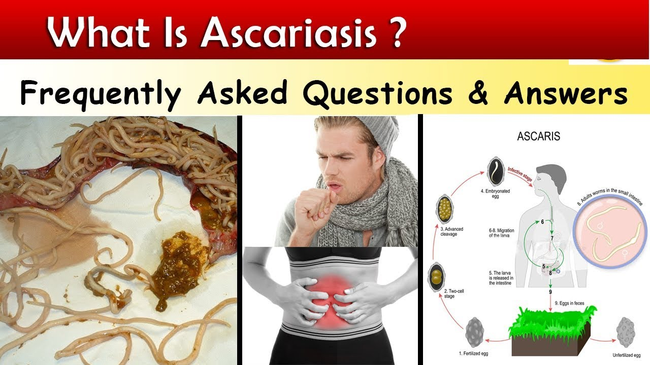 ascariasis képe