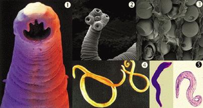 paraziták az emberi torok tüneteiben és kezelésében