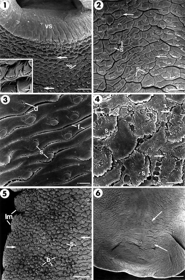 Pinwormok leírása, A pinworms és a roundworms különbsége