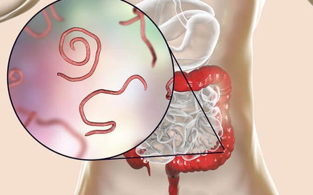nem gyógyíthatjuk a pinwormokat