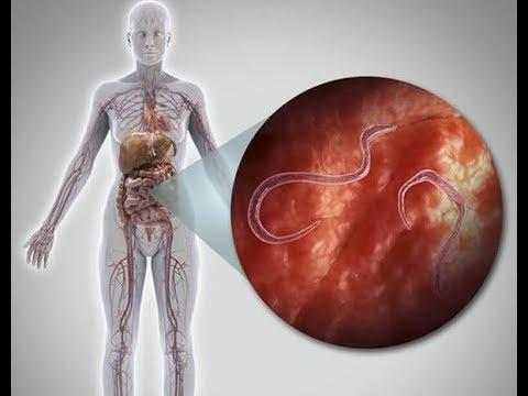 parazitákat üldözni a testben