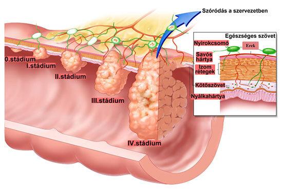Körömféreg-kezelési rend