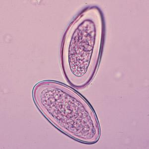 paraziták az emberi testben a fejben kerekféreg- tojás tünetei