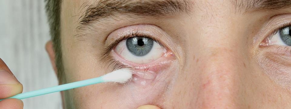 férgek tünetei az arcon