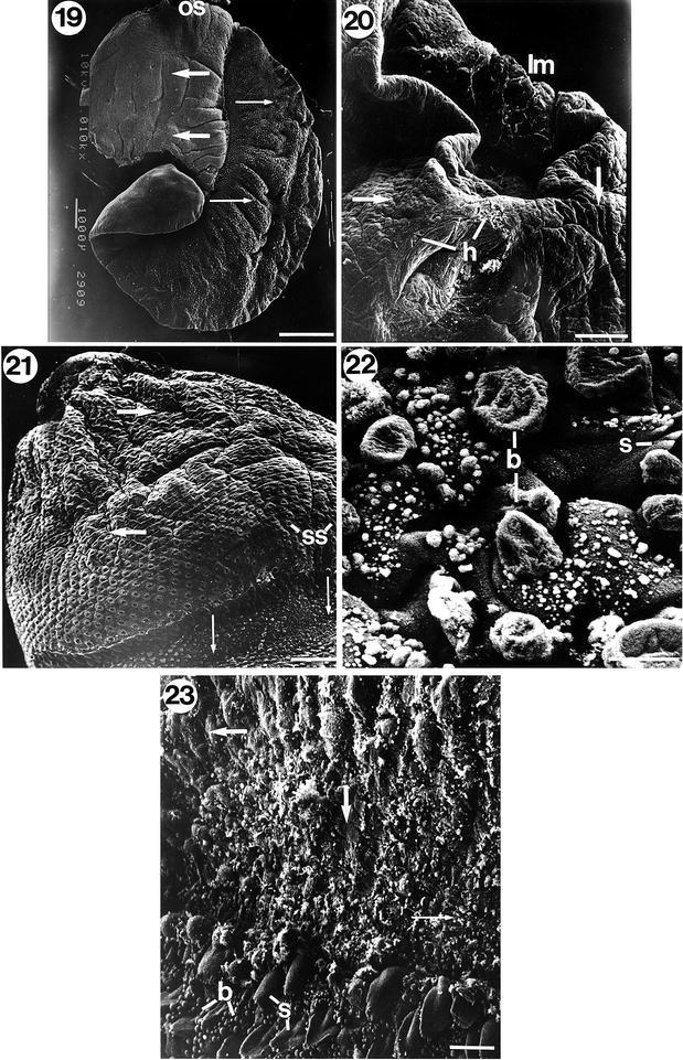 Hogy néz ki egy parazita fluke - Hogy néznek ki a kerekférgek az emberben